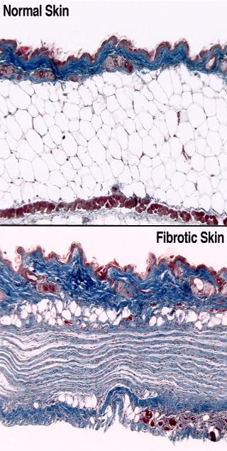 Skin Fibrosis